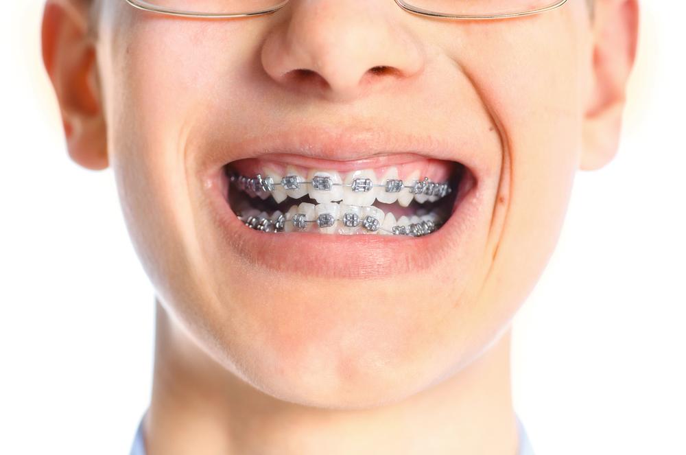 Do I need an orthodontist in Plantation FL?